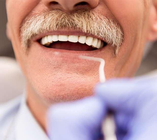 South Gate Adjusting to New Dentures
