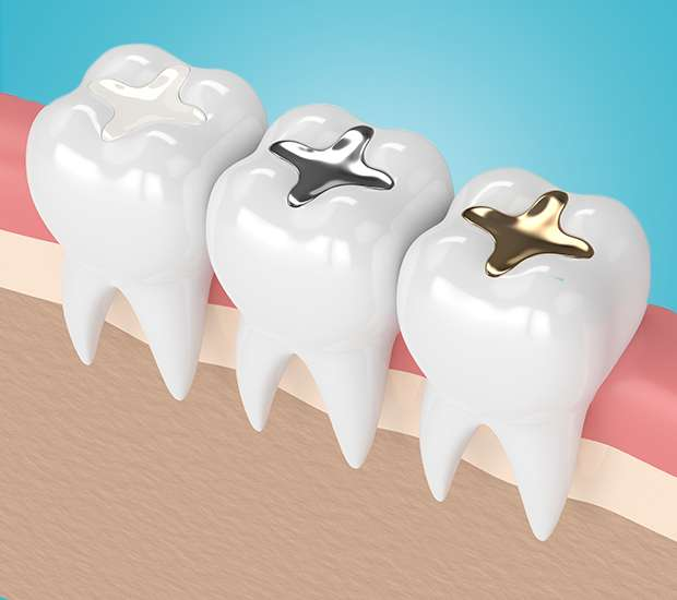 South Gate Composite Fillings