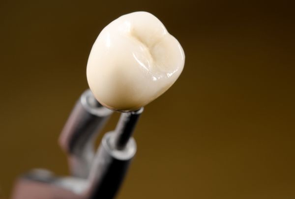 Do Dental Crowns Look Natural?