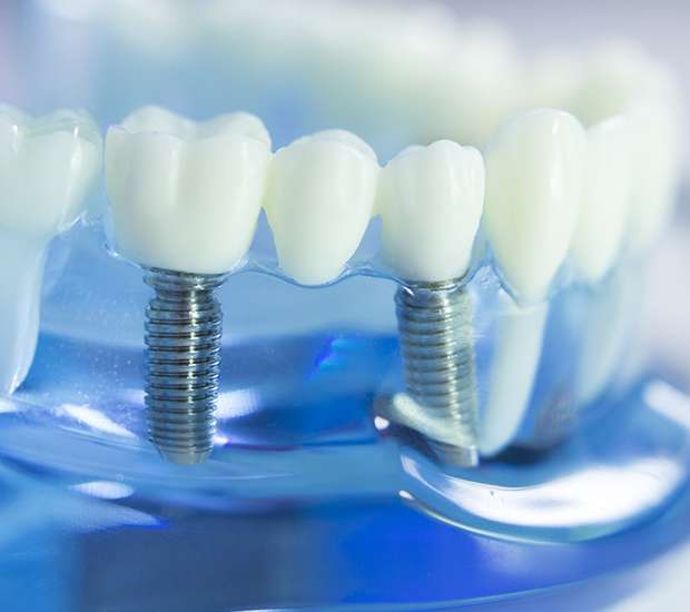 South Gate Dental Implants