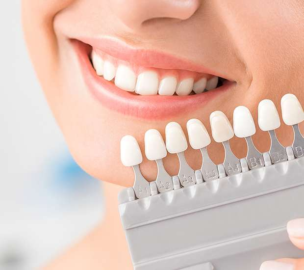 South Gate Dental Veneers and Dental Laminates