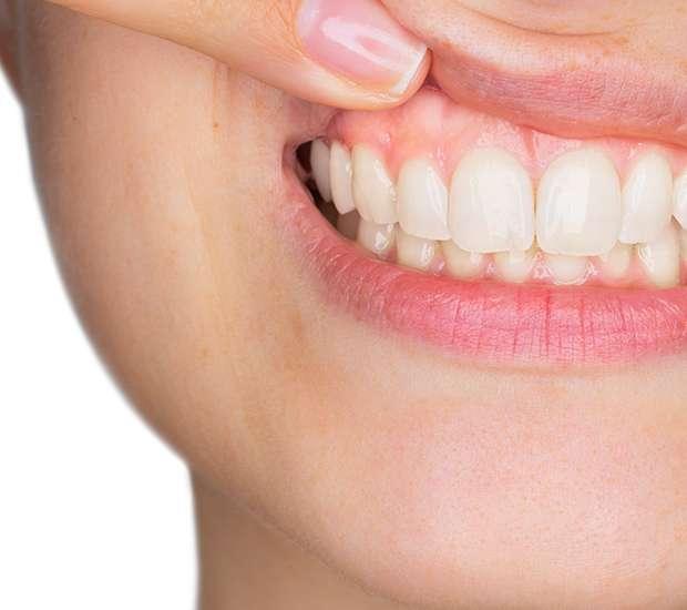 South Gate Gum Disease