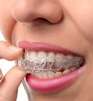 Clear Aligners - Almost Invisible Braces South Gate, CA