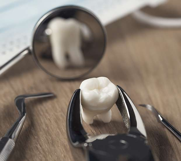 South Gate When Is a Tooth Extraction Necessary